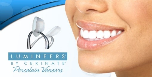 Smile makeover - Frederick Street Dental Care